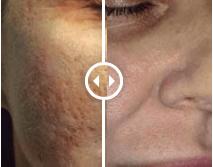 Peeling Acne verbetering dokter Aleida Dijkstra