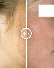 Peeling hyperpigmentatie zonneschade dokter Aleida Dijkstra Blaricum dermatoloog