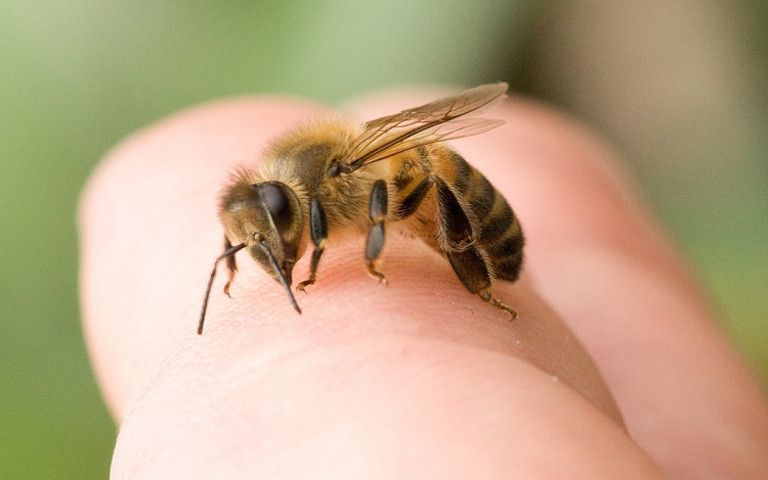bee-sting-remedies