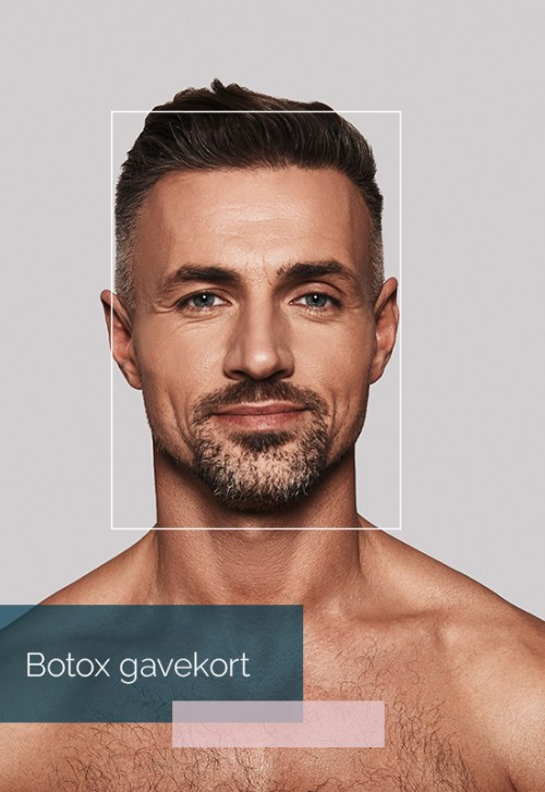 Botox gavekort
