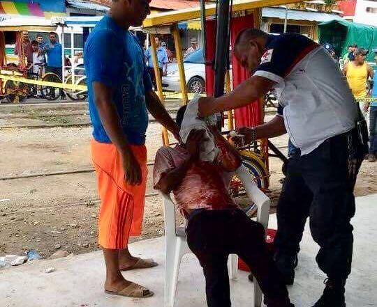 Joven triciclero de 22 años de edad es atacado a balazos en #Mapastepec WhatsApp Image 2017 10 26 at 19.13.00