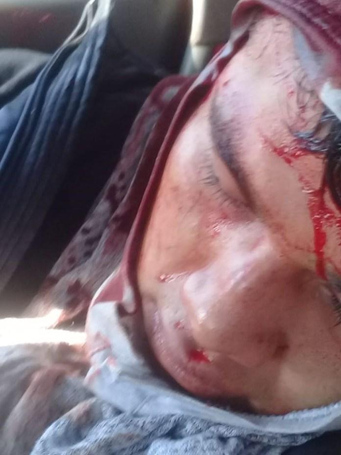 Desalojan policías con gases a padres de 43 de Ayotzinapa en Chiapas IMG 4841