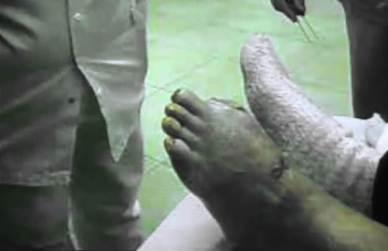 Dito del piede amputato per cancrena