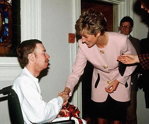 diana AIDS patient 1991