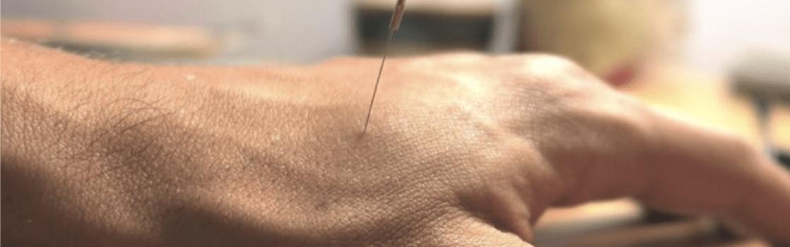 Acupuncture EXERCISE