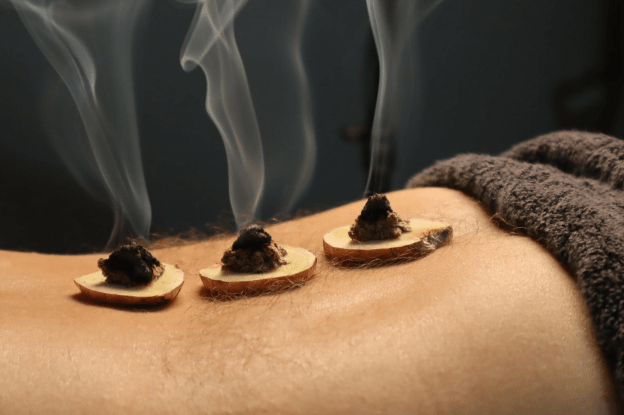 Moxibustion to support the immune system