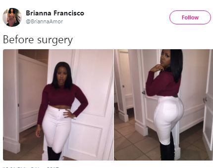 Lady who got plastic sugery shows off her before and and after body ...and people aren
