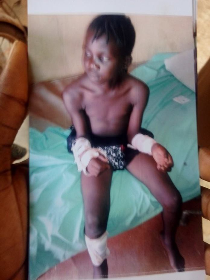 What a wicked mother! See the shocking thing a woman did to her stepdaughter in Lagos  (Graphic Photos)