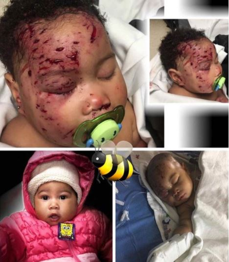Photo:?4-month-old baby attacked by a raccoon gets 65 stitches to her face
