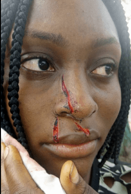 5a587da08283f - 300 level UNIPORT student slashes her roommate's nose with razor (photos)