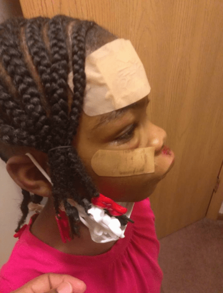 Mom shares horrific injuries her daughter sustained during a school trip, narrates how the teachers neglected her.