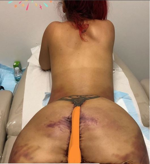 ?Instagram model gets her Silicone Butt removed, shares shocking photos