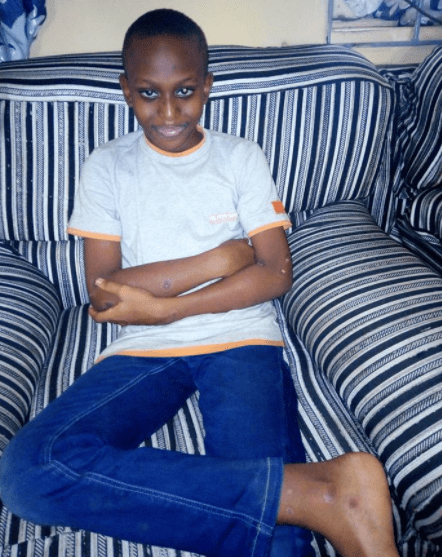 Nigerian boy almost dies after reacting horribly to a pack of juice (graphic photos)