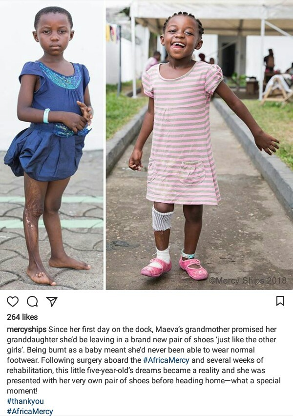Photos: Dream come true! 5-year-old girl burned as a baby wears normal shoes for the first time after surgery