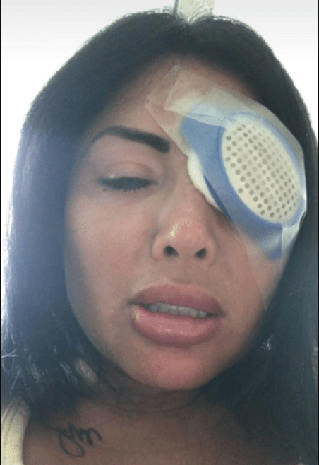 Instagram model blinded after surgery to change her eye color goes wrong (photos)