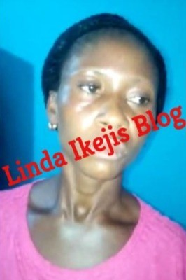 Graphic photos: Mother pours kerosene on only son and sets him on fire for stealing an mp3