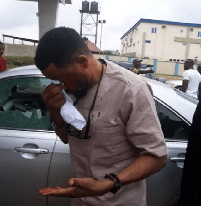 Security expert injured as police officers open fire at Ikeja Airport toll gate while chasing suspects (photos)