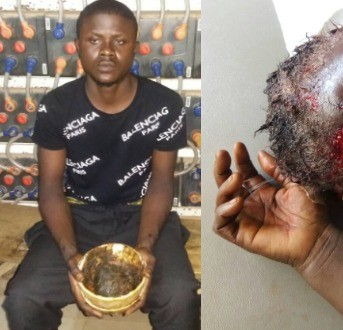 Graphic photos: Yahoo Boy attempts to kill his mother for money rituals in Lagos