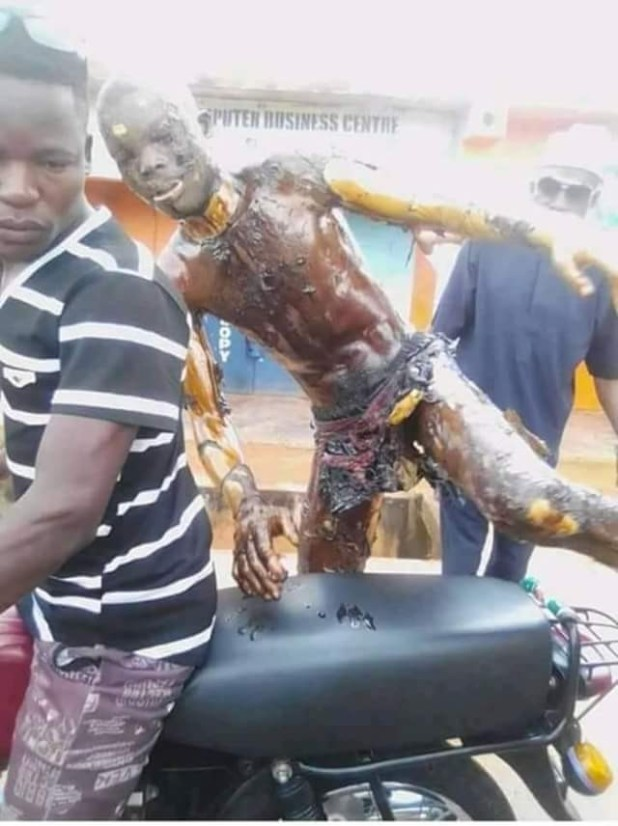 Sad photo of a Nasarawa gas explosion victim getting on a motorcycle to take himself to hospital (graphic)