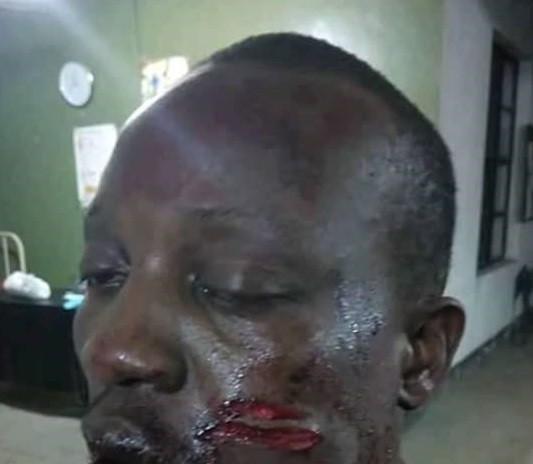 Graphic: Two persons killed by gunmen in Rivers State, another shot in the face