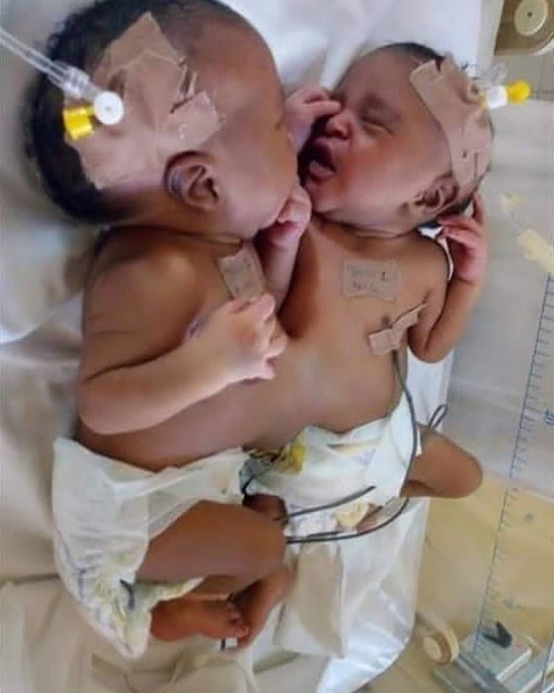 Photos: Doctors separate conjoined twins in Abuja hospital