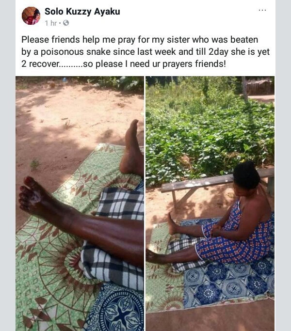 Photos: Nigerian woman battles for life days after being bitten by poisonous snake