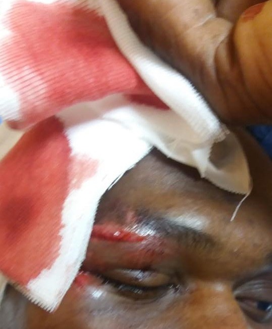 Photos: Italian man sentenced to 1 year, 8 months for attacking a Nigerian migrant