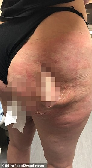 Woman left with huge hole in buttock and her nipples