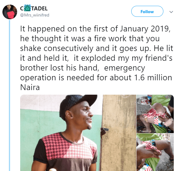 Fireworks blows off fingers of a student of UNIUYO as it exploded while he was still holding it (graphic photos)