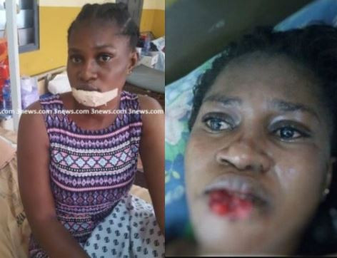 Photo: Jealous girlfriend bites off the lower lip of her suspected rival in Ghana