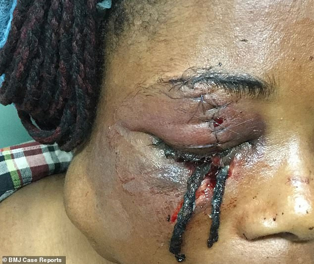 Fight between two sisters in Delta state?leaves one blind in the eye with doctors pulling a hair extension out of her face (Graphic Photos)