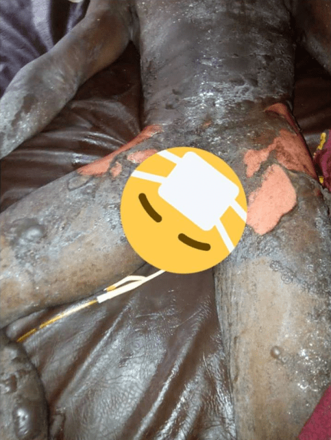 (photos)Woman pours boiling water mixed with pepper on her husband