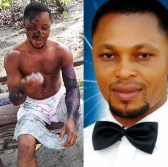Jealous girlfriend scalds her boyfried with hot water in Rivers state (photos)