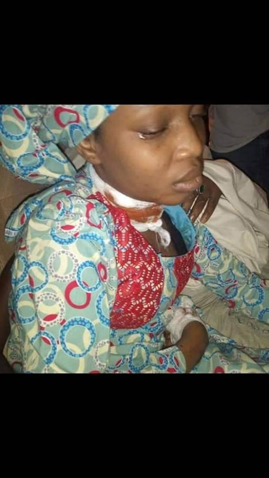 Graphic: Kano police arrest man who attacked a nurse with knife at her duty post after she resisted rape attempt