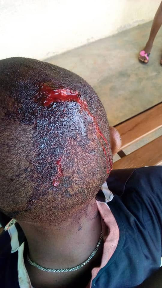 Graphic Photos: Police officers in Delta State abused, brutalized and assaulted me with their rifles - Man cries out