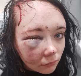 Girl, 18, battered by boyfriend is left permanently brain damaged as bits of her skull became wedged in her brain
