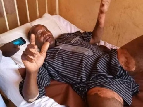 Photos of Kano teacher whose wife poured hot water on his private part for planning to marry second wife