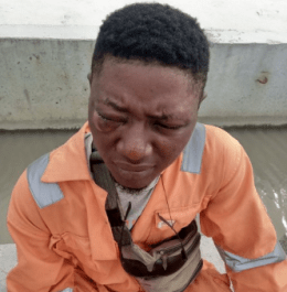 Man left with swollen eye after being assaulted by soldier at Dangote Fertilizer Plant in Lekki (photos)