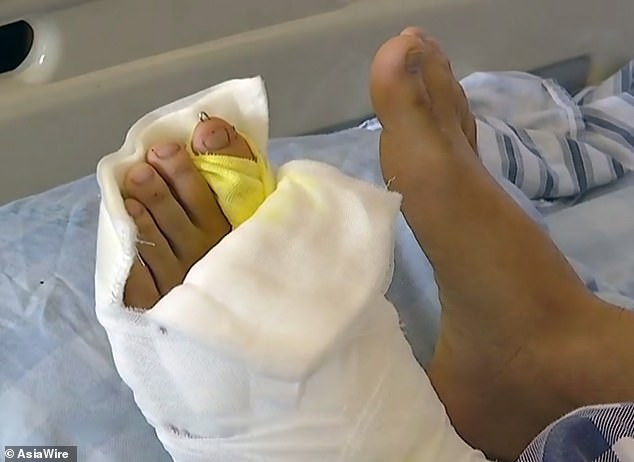 Chinese man born with nine toes undergoes surgery to cut off four of them