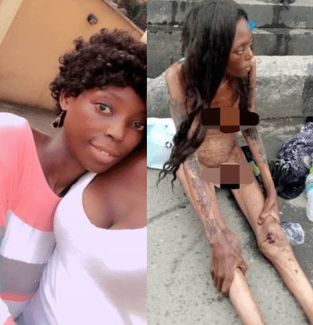 Naked emaciated lady seen in Ajah is unrecognizable in new photos after being rehabilitated