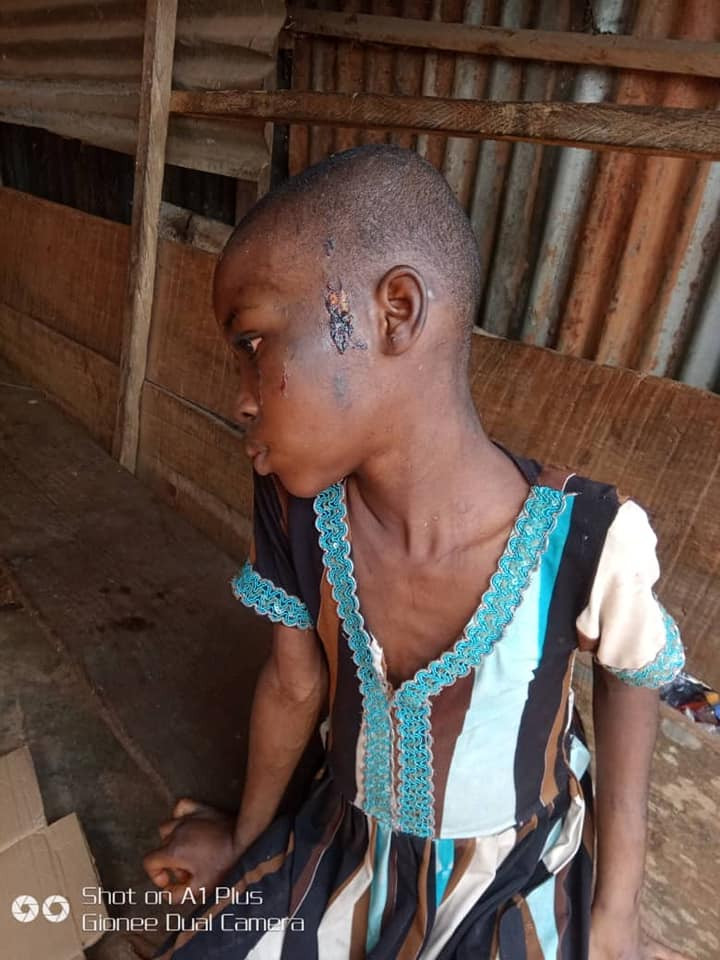 11-year-old househelp who was beaten and fed with cockroaches and faeces by her boss, has been rescued