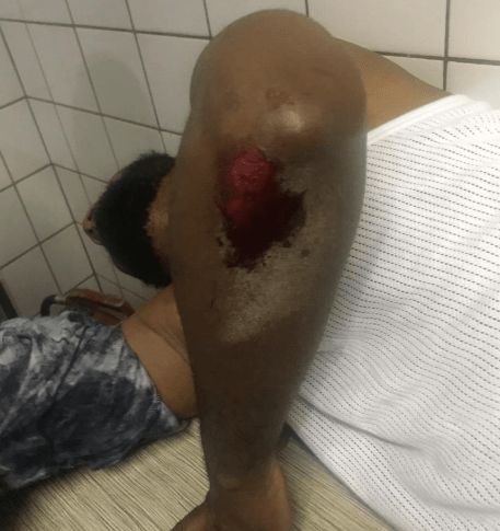 Deji Adeyanju reportedly hospitalized after being injured by participants in a counter protest in the presence of police men