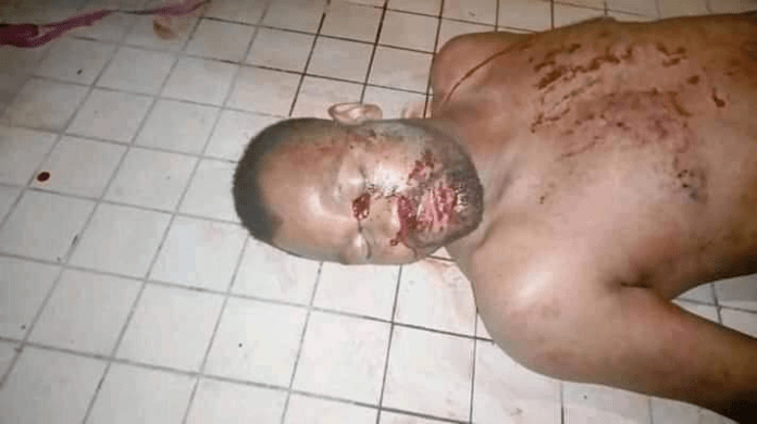 Woman in Imo state allegedly stabs her husband twice in his sleep because she suspected him of having a side chic (graphic photos)