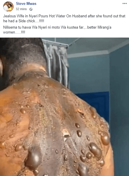 Viral photos of a man whose wife allegedly poured hot water on because she found out he has a side chic (photos/video)