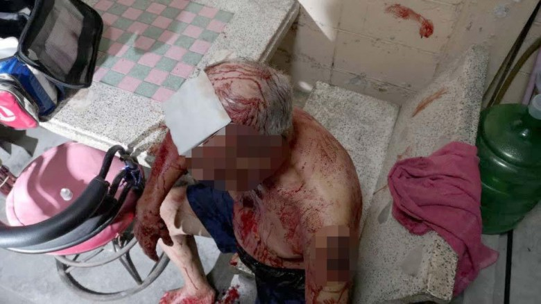 78-year-old pensioner found soaked in blood after engaging in vicious knife fight with his wife (photos)