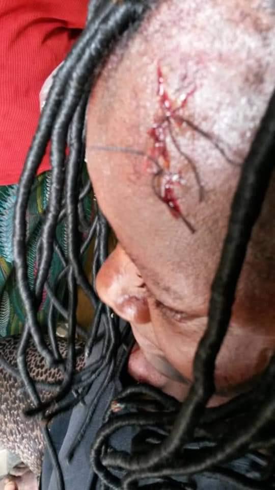 Nigerian man flees after breaking his wife