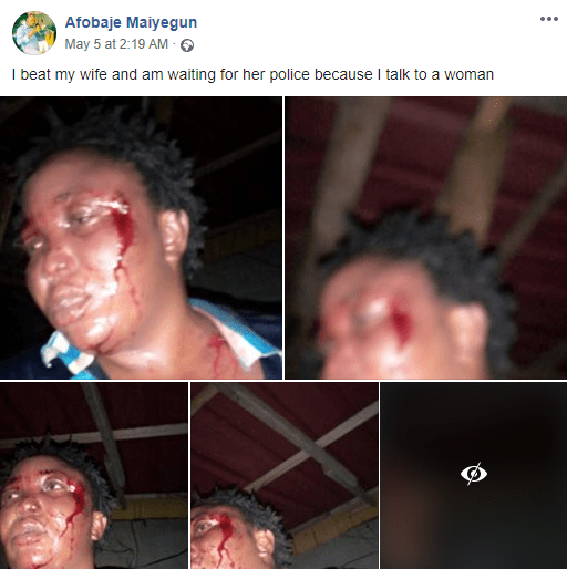 Update: Man who battered his wife and then went on Facebook to brag about it and shared photos of her bleeding face, has been arrested