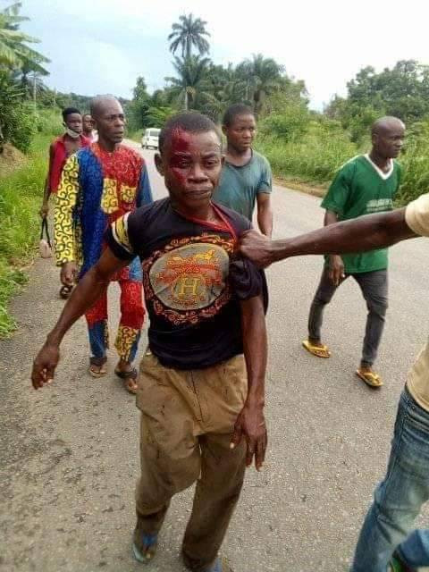 Man kills his cousin over mangoes in Abia (graphic photos)  Man kills his cousin over mangoes in Abia (graphic photos) 5ebd97792cb80