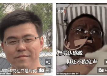 Update: One of the Wuhan doctors whose skin turned dark after Coronavirus damaged his liver has died after a 5-month fight