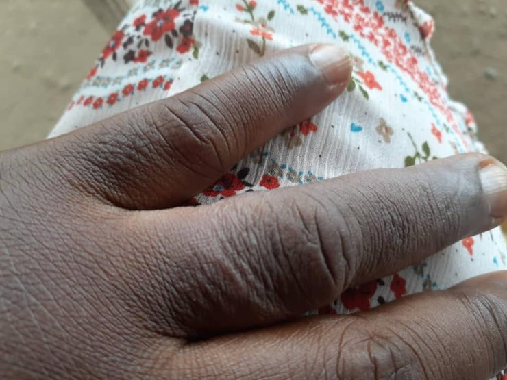 51-year-old woman counters nursing mother